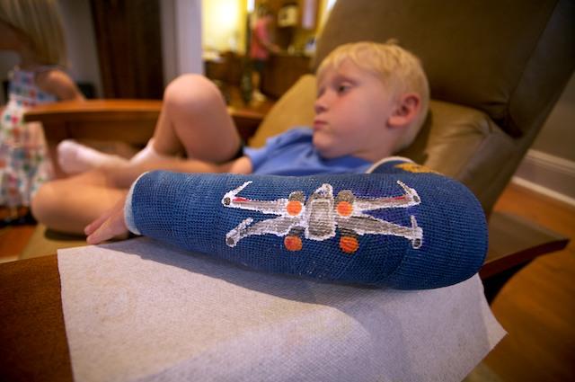 Pin cast decorating ideas casttoo castoo tattoos arm leg for Arm cast decoration ideas